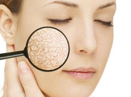 Bỏ túi cách phục hồi da bị bào mòn cực đơn giản